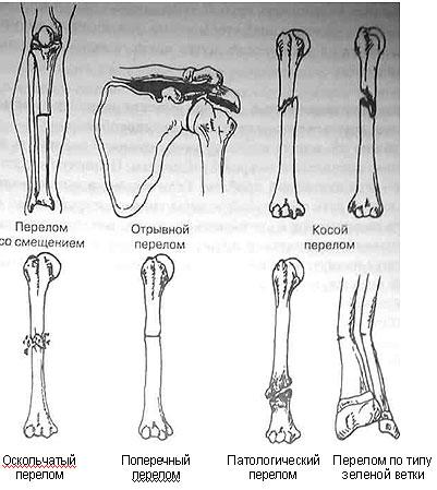 Переломы у детей (по типу зеленой ветки)